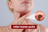 Chỉ 2 phút TÌM HIỂU nội dung này - Tạm biệt ngay VIÊM THANH QUẢN kéo dài