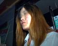Cô gái Trung Quốc đau khổ tột cùng vì gương mặt bùng cháy khi ăn lẩu