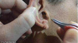 Con trai 7 tuổi đau tai nhiều ngày, bố mẹ kinh hãi khi phát hiện ra sự thật này