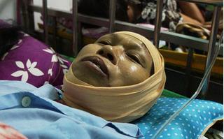 Nổ lò hơi ở Thái Bình: Nhân chứng hoảng loạn nhớ về phút định mệnh