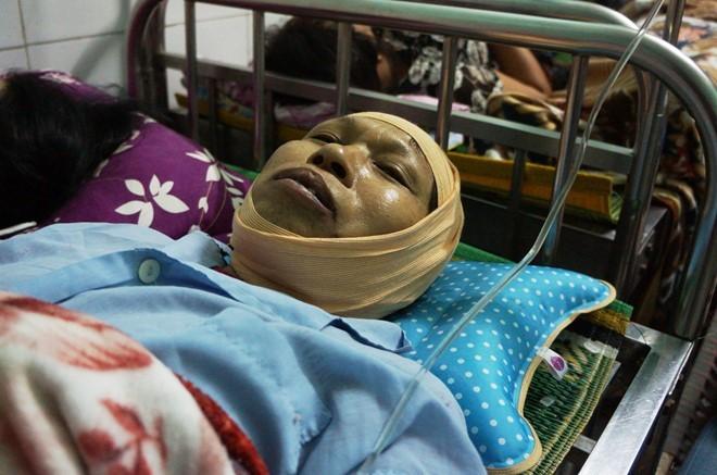 Bà Nguyễn Thị Miến thảng thốt kể lại vụ nổ lò hơi ở Thái Bình