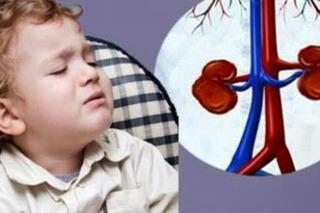 Bé 2 tuổi bị sỏi thận do uống nhiều sữa tươi