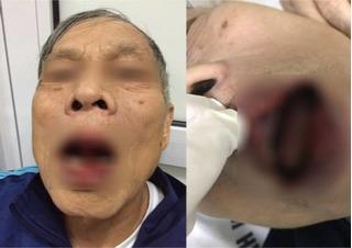 Phẫn nộ vợ chạy xe ngược chiều gây tai nạn, chồng đấm tiến sĩ già 76 tuổi chảy máu mồm, nhập viện