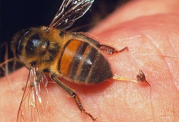 Trước khi bị ong đốt chết, anh D. từng có tiền sử bị bệnh tim
