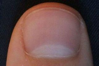 Móng tay có đốm trắng hình lưỡi liềm: Cảnh báo bệnh nguy hiểm
