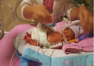 Ông bố Việt kêu gọi giúp đỡ 4 tỷ để cứu con sinh non ở 26 tuần tại Singapore