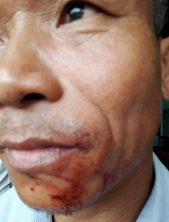 Bảo vệ trường THCS Lộc An bị nhóm côn đồ xăm trổ đánh chảy máu miệng