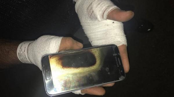 Anh Mann bỏng nặng sau khi chiếc Samsung Galaxy S7 phát nổ