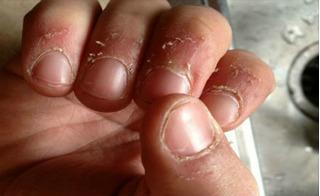 Đừng coi thường vết xước móng rô ở tay con bạn