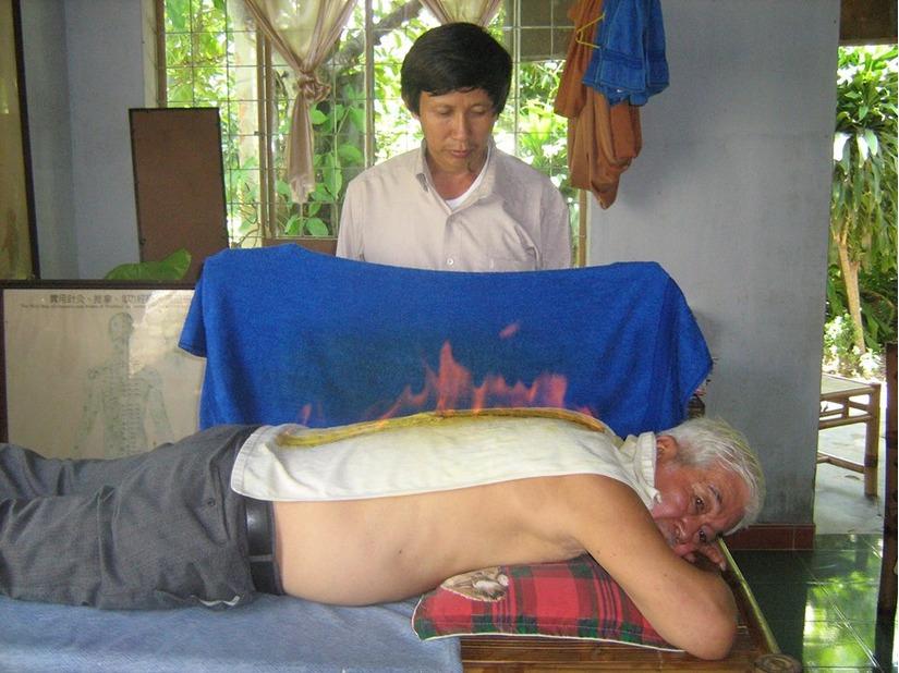 Đốt lửa trên lưng để chữa cảm tại nhà của Lương y Phan Công Tuấn