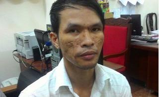 Vụ hành hạ dã man trẻ em: Thu thêm gần 50 clip bạo hành của nghi phạm