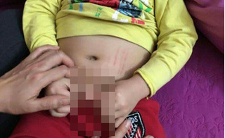 Cô giáo mầm non bị tố búng bộ phận sinh dục bé trai đến sưng đỏ