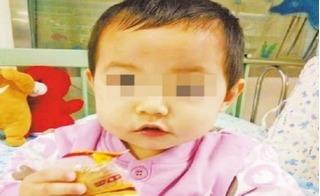Mẹ lơ đễnh một phút, bé con bị đũa xuyên từ mắt lên tận não