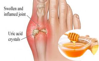 Bài thuốc kỳ diệu chữa bệnh gout cực hiệu quả ai cũng có thể tự làm từ gừng