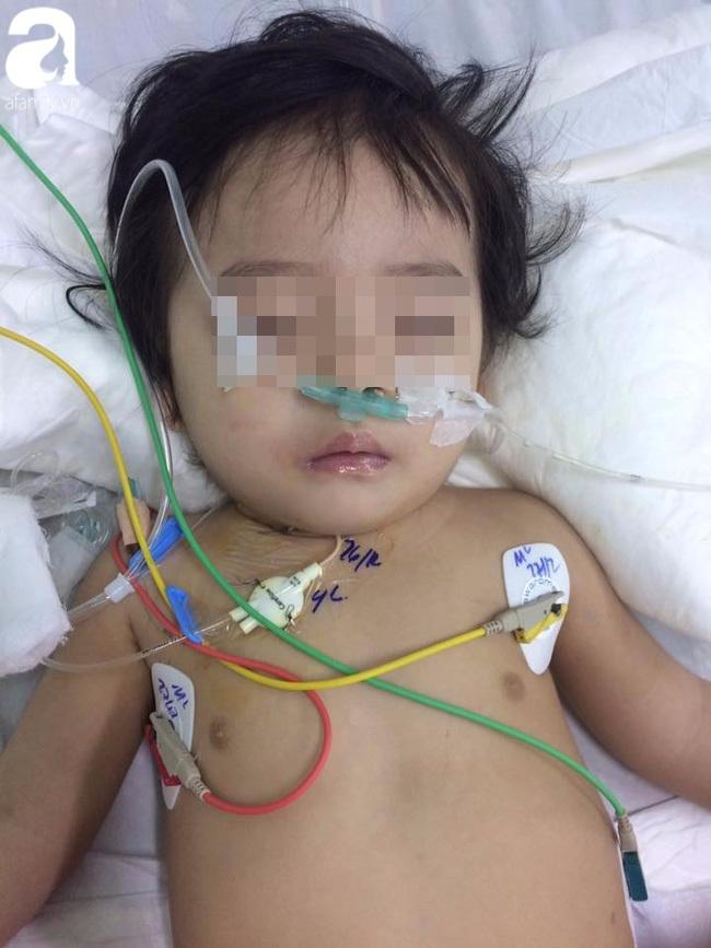 Bé gái 13 tháng tuổi bị chấn thương sọ não 2