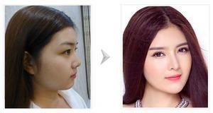 Trước khi phẫu thuật nâng mũi cần kiểm tra cơ thể để tránh lây nhiễm