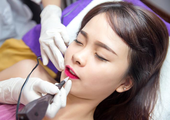 Phẫu thuật xăm môi