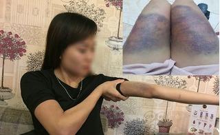 Vụ cô gái bị bạn trai đánh biến dạng: Có phạm thêm tội bắt giữ người trái pháp luật?