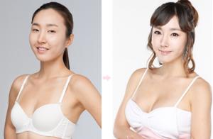 Sau khi phẫu thuật nâng ngực phải dùng phương pháp masage hỗ trợ phục hồi