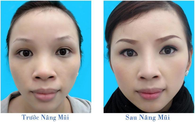 Phẫu thuật chỉnh hình mũi