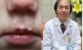 Chủ quan với sổ mũi ở trẻ, nhiều người trả giá đắt: viêm não, nhiễm trùng huyết, tử vong