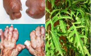 Sử dụng đinh lăng theo cách này, người bệnh gout không bao giờ lo tàn phế