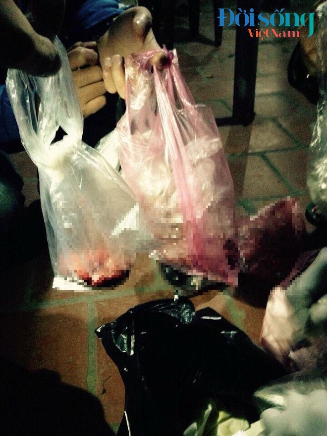 Sau khi bị bứt khỏi bụng mẹ, các hài nhi được cho vào túi bóng và vứt lẫn với rác bẩn