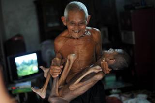 Rơi lệ nhìn ông nội 88 tuổi bế cháu trai mắc bệnh quái ác biến thành