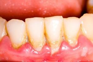 Mảng bám răng và cách phòng tránh