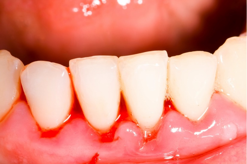Cao răng