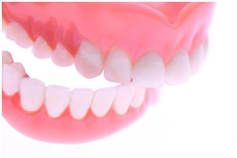 Tránh gây dị dạng ở hàm