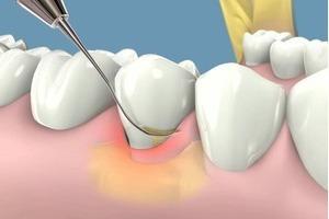 Mảng bám răng và cách làm sạch mảng bám răng hiệu quả