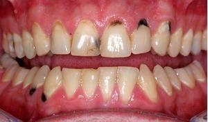 Sự xuất hiện của bệnh sâu răng