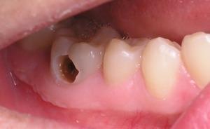 Cách điều trị bệnh sâu răng hiệu quả