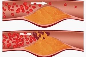 Mỡ trong máu ở người béo đều cao chăng?
