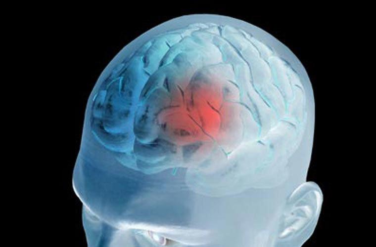 Huyết quản động mạch não