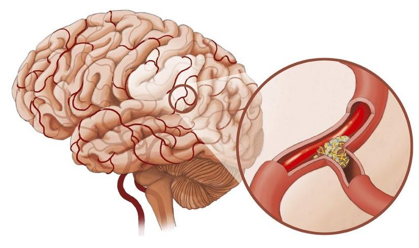 Bệnh huyết quản não