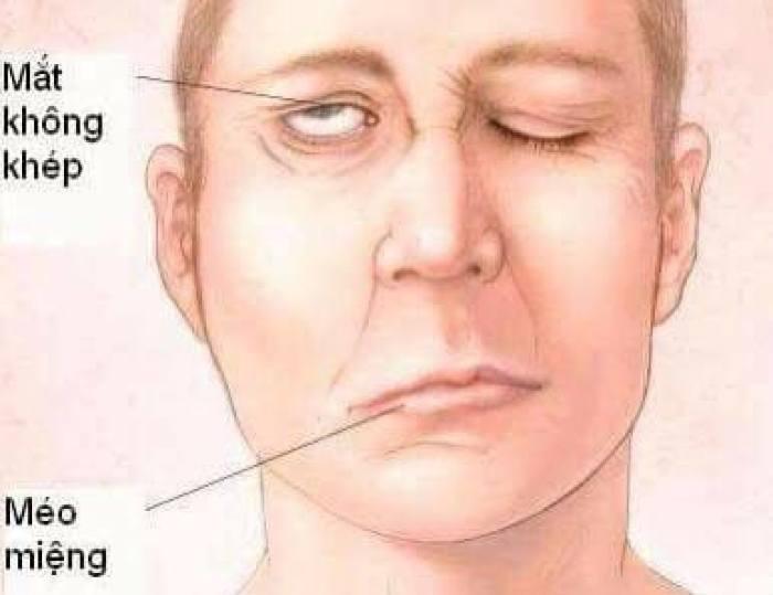 Trúng phong là một loại bệnh của bệnh huyết quản não