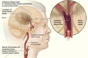Thế nào là não tắc nghẽn mạch?