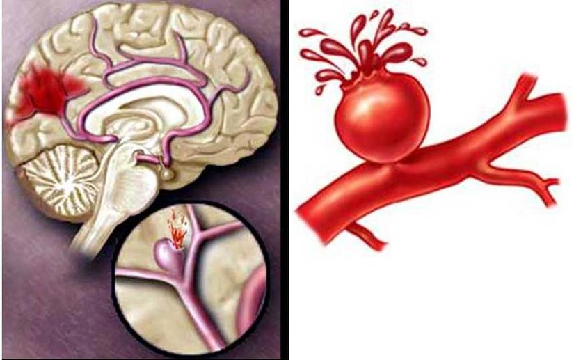 Phân biệt não xuất huyết và não xơ cứng
