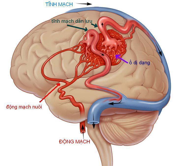 tĩnh mạch biến dạng