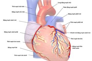 Bệnh động mạch vành tim có quan hệ với bệnh chết não không?