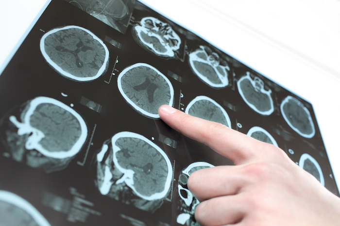 Chẩn đoán não chết cứng
