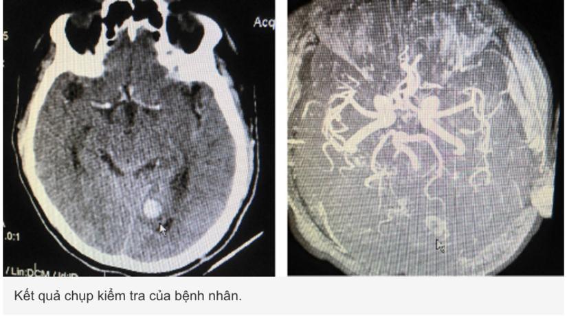 Chẩn đoán xuất huyết não