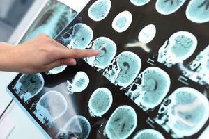 Điều trị nghẽn mạch não cần thực hiện ngay lập tức