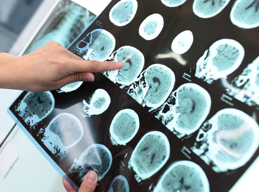 Điều trị nghẽn mạch não