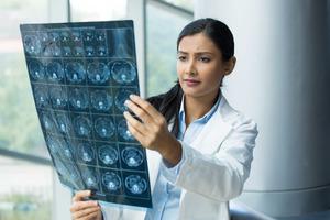 Những phương pháp điều trị nghẽn mạch não cho bạn tham khảo