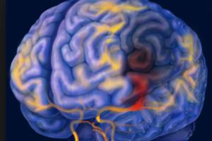 Điều trị giải nghẽn tĩnh mạch đều thích hợp với người bệnh bị não chết cứng chăng?