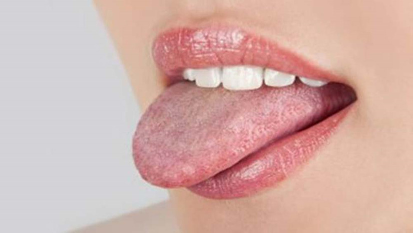 bệnh tưa miệng
