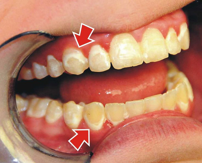 Răng bị ố do Fluor